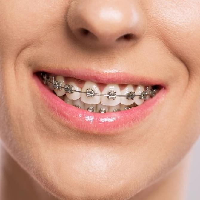 Ventajas de la ortodoncia para adultos