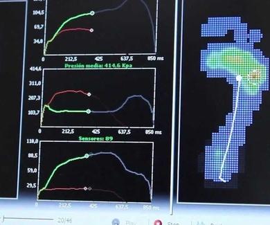 Estudio biomecáncico en LLeida