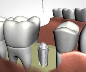 Todos los productos y servicios de Clínicas dentales: Clínica Dental Castellbisbal