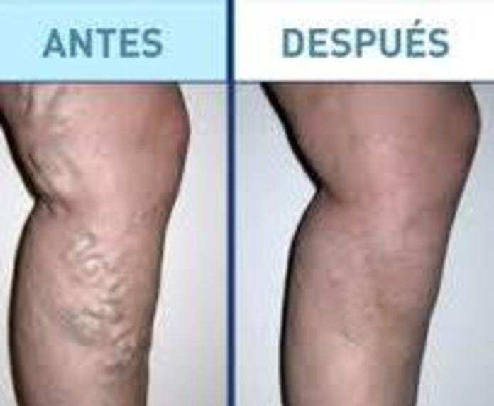 Varices sin Cirugía: Tratamientos de       Margar