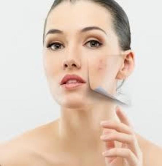 Tratamientos anti acné Oviedo