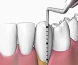 Todos los productos y servicios de Clínicas dentales: Clínica Dental Villa Vigil y Asociados, S.L.
