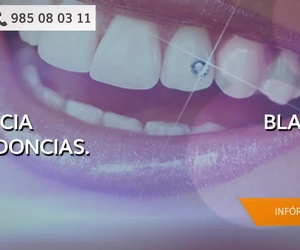 Ortodoncia invisible en Oviedo | Clínica Blanco Dental