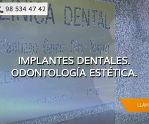 Implantes dentales en Gijón | Clínica Dental Santiago G. Fdez. - Nespral