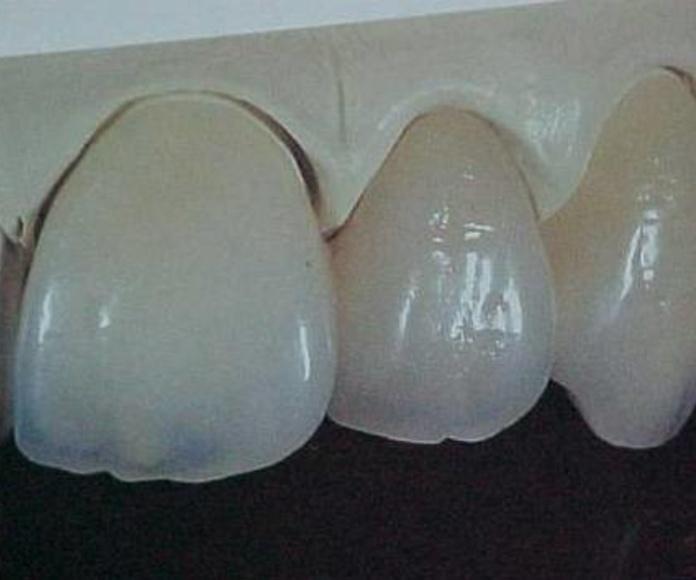 Provall - Metal cerámica