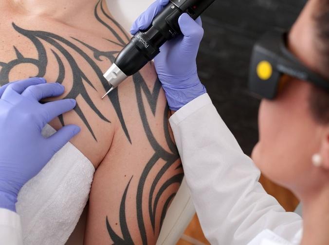 Mitos a desterrar sobre la eliminación de tatuajes