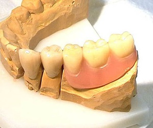 Todos los productos y servicios de Dentistas: Clínica Dental El Carmen