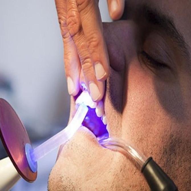 ¿Qué debes hacer para alargar los efectos de un blanqueamiento dental?