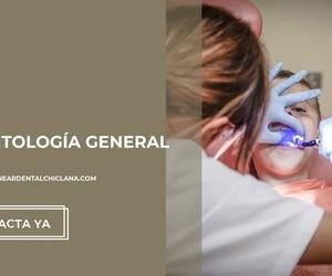 Blanqueamiento dental Chiclana de la Frontera | Clínica Neardental