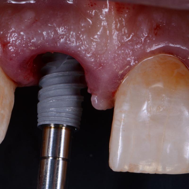 Implantología: Tratamientos de Clínica Dental Tàrrega - Guissona