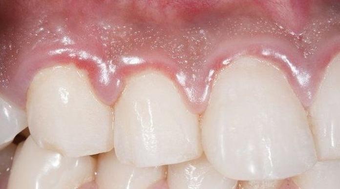 Las encías dañadas pueden ser síntoma de otras patologías.