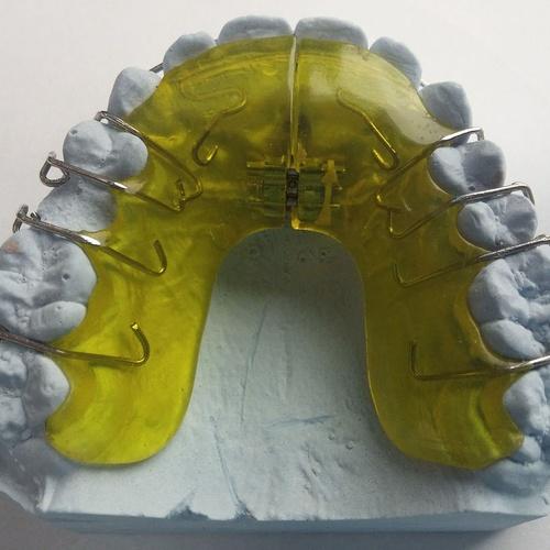 Ortodoncia para niños y adultos