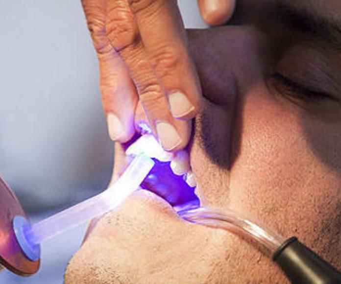 Endodoncia: Tratamientos de Clínica Dental Palamadent