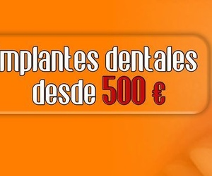 IMPLANTES DENTALES DESDE 500 €