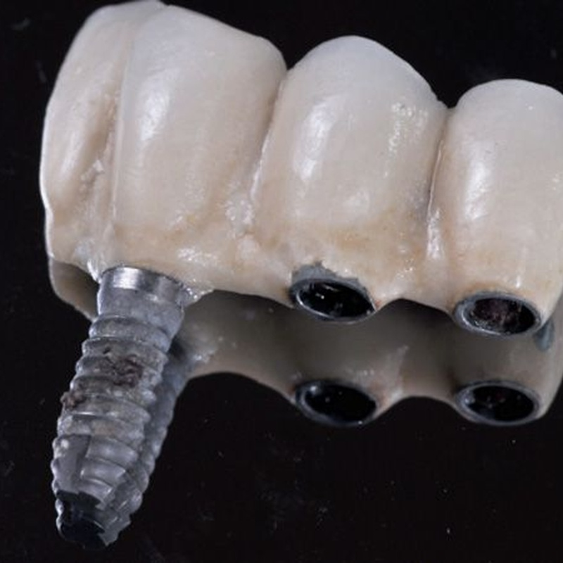 Implantes: Tratamientos de Clínica Dental Paupie
