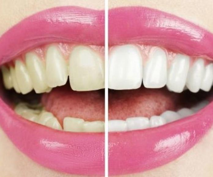 Blanqueamiento dental: Tratamientos de Clínica Saúco
