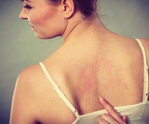 El estrés y los problemas dermatológicos