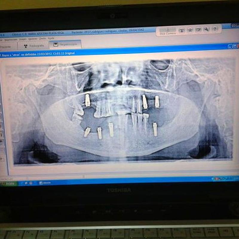 Digitalización radiografias: Servicios de Centro Dental Integral Mª Azucena Plata Vega