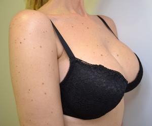 Aumento de mamas en Alicante