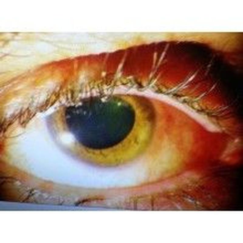 Glaucoma: Catálogo de Centro Médico  Oftalmológico Milenium