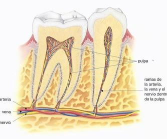Ortodoncia: Servicios de Alser Dental