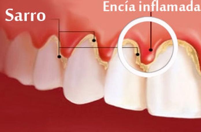 Raspados y Alisados Radiculares (curetaje): Tratamientos y Productos de Odontología Integral Fernando Román