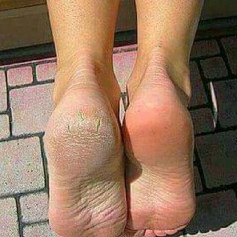Cuidado integral del pie: Servicios de Alejandra Estética y Belleza