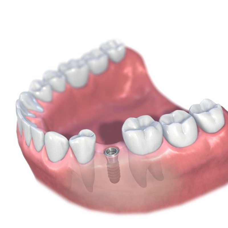 Implantes: Tratamientos de Clínica Dental Tucán