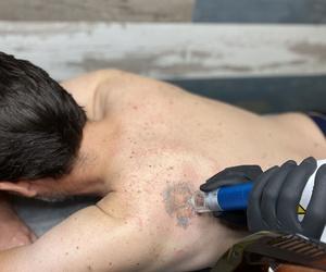Eliminación de tatuajes con laser