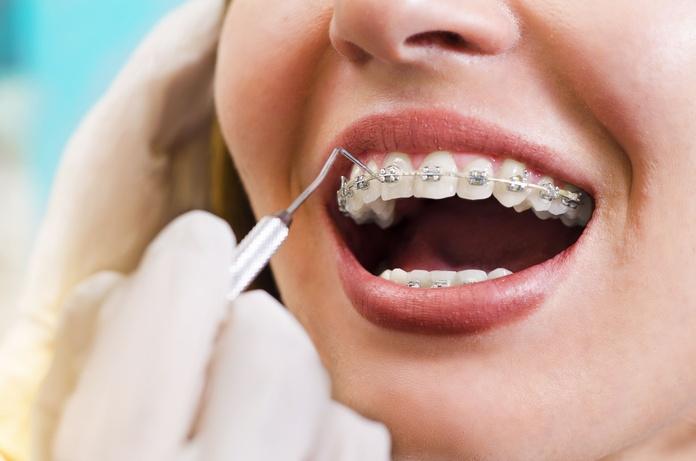Ortodoncia: Tratamientos de Trabajamos con las principales mutuas y aseguradoras de salud