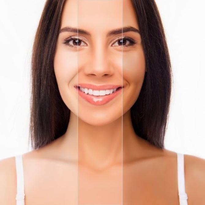 ¿Qué relación tiene la melanina con la depilación láser?