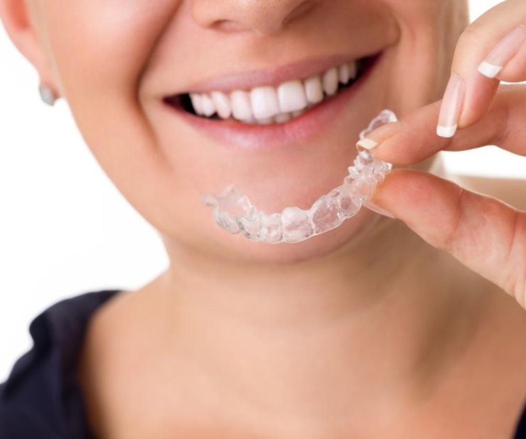 Se terminaron los complejos gracias a la ortodoncia invisible