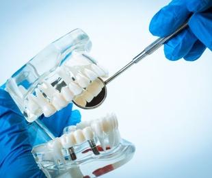 Dudas habituales sobre implantes dentales