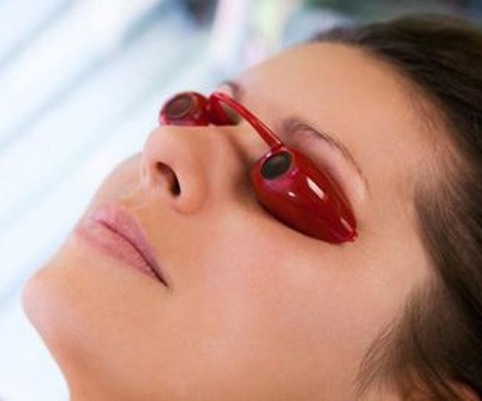 Fotorejuvenecimento facial: Servicios de Clínica Vicario