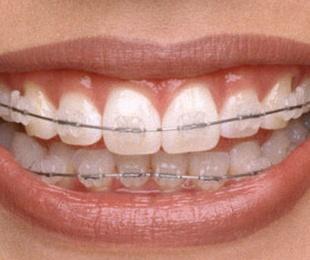 Ortodoncia Brackets Cerámicos