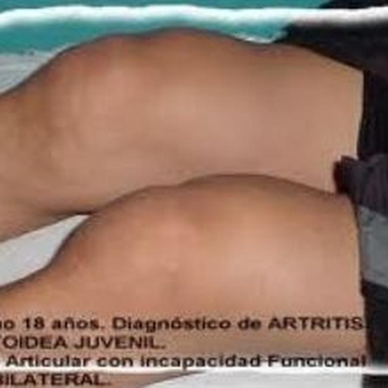 Rodillas inflamadas por artritis