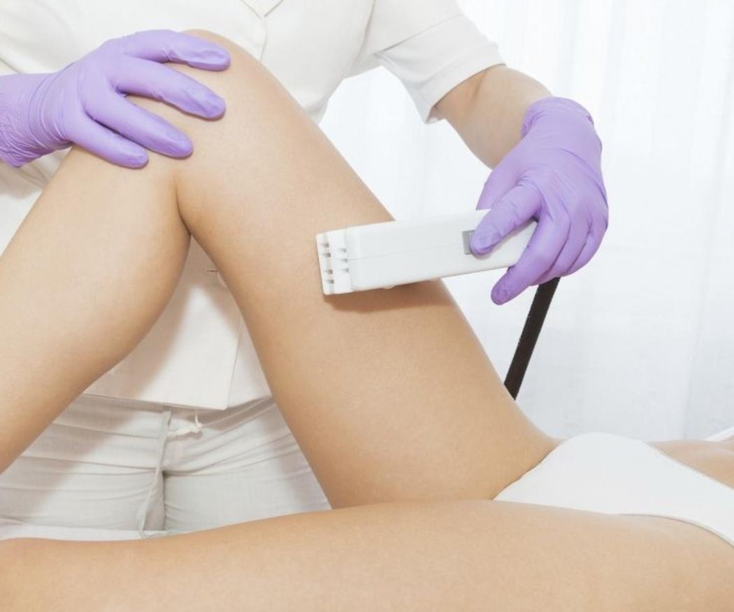 Los beneficios de la depilación con láser de diodo