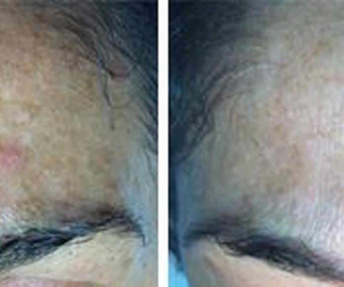 Micromesoterapia: Tratamientos de Centro de Estética Mª Carmen