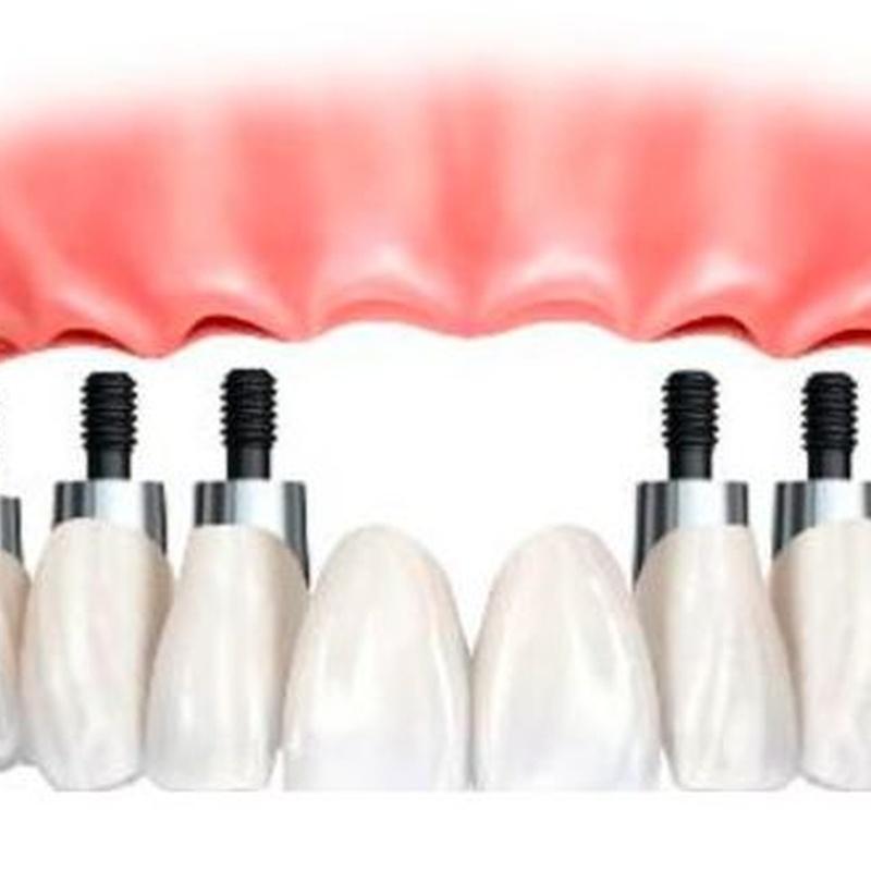 Implante arcada completa