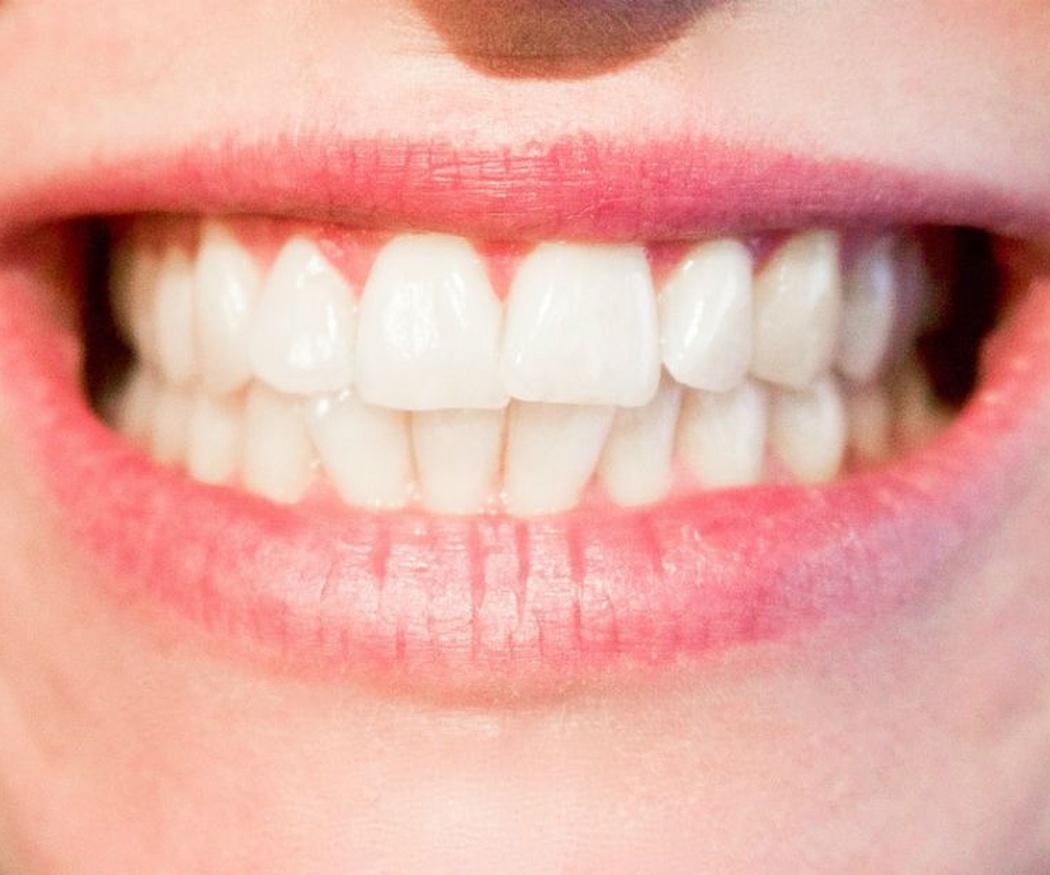 Los beneficios de las fundas dentales