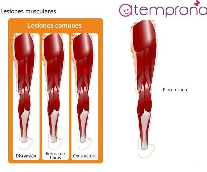 lesion muscular gravedad