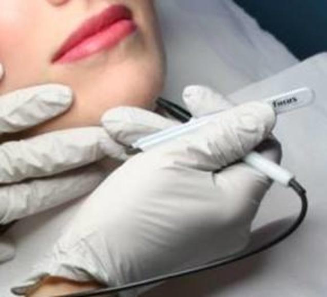 Depilación eléctrica: Tratamientos y productos de Lipostetika Unisex