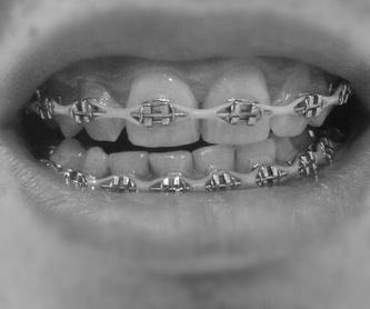 Odontología general : Servicios  de Lorena Mª Sánchez Liñán