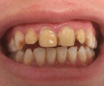 Re-endodoncia: Tratamientos de Clínica Dental Tucán