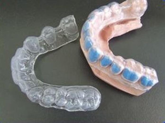Otros tipos de prótesis: Servicios de Ángel Dueñas Laboratorio Dental
