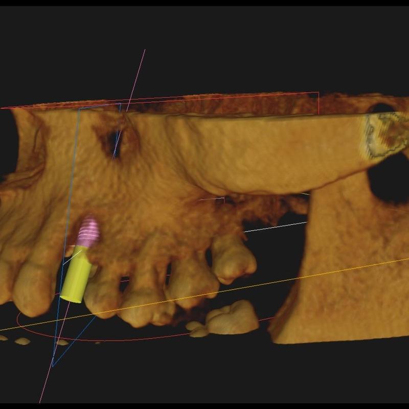 Endodoncia : Servicios   de Clínica Dental Dr. Javier Pérez Martínez