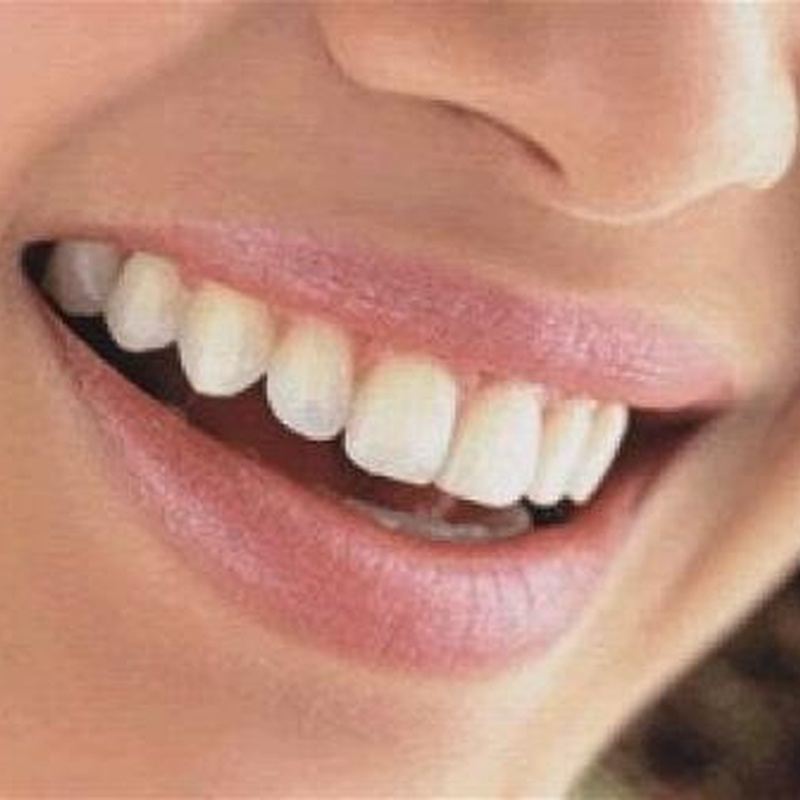 Gingivoplastia: Tratamientos de Hospident Clínica Dental