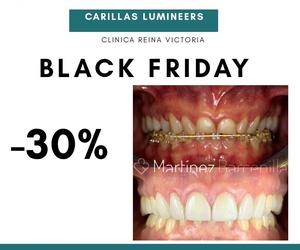 BLACK FRIDAY | CARILLAS LUMINEERS