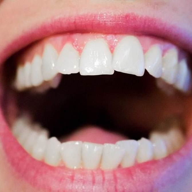 Lo que te interesa saber sobre el blanqueamiento dental