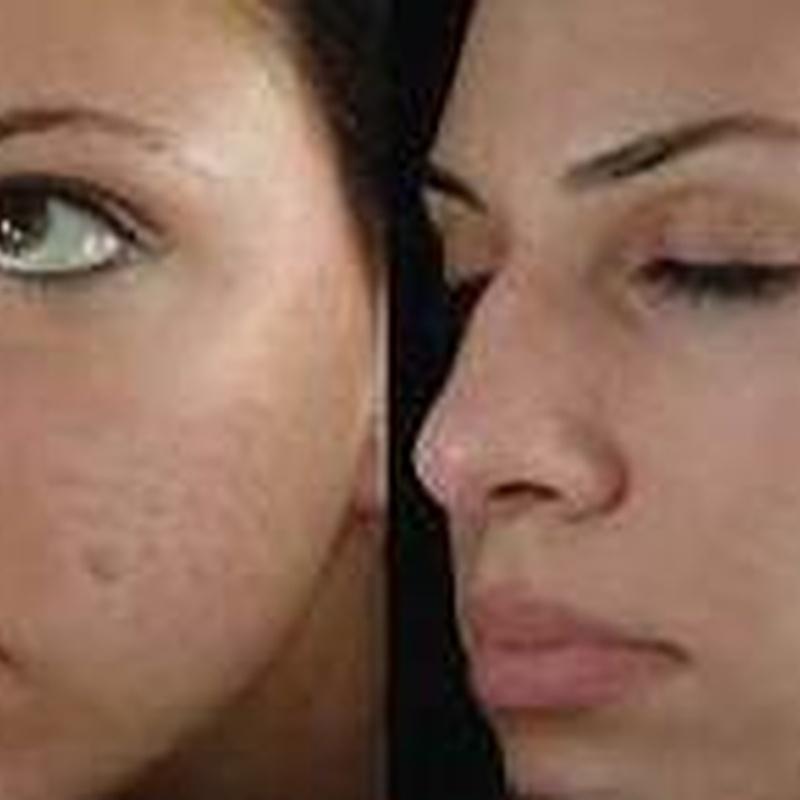 Dermapen. Rejuvenecimiento de la piel: Servicios de Beauty Channel